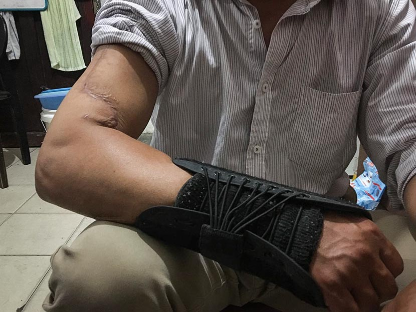 Li Xinfu shows off the scar on his right arm at his home in Shanghai, Oct. 19, 2016. Courtesy of Li Xinfu