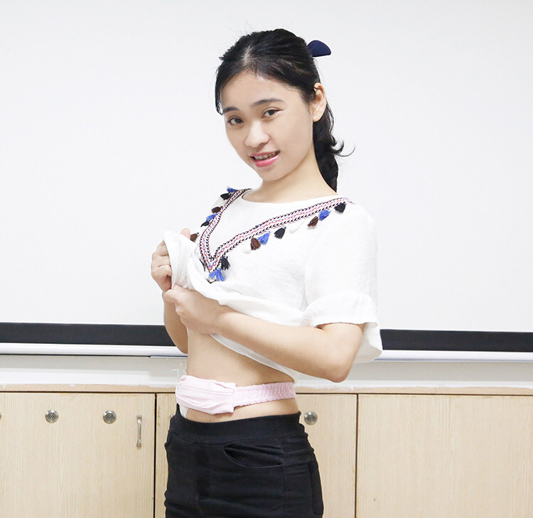 Zhong Jianhua poses for a photo while wearing her insulin pump. Courtesy of Zhong Jianhua