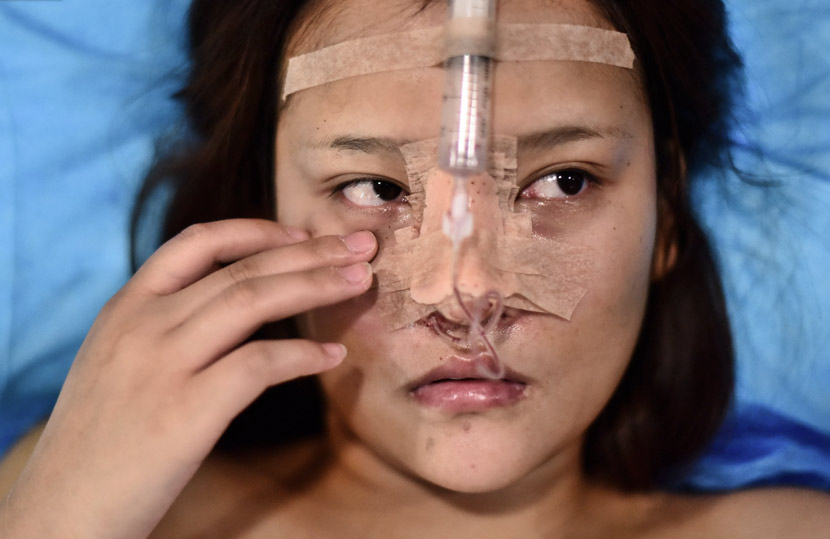 A 20-year-old woman after cosmetic surgery at a hospital in Qingdao, Shandong province, Dec. 11, 2018. IC