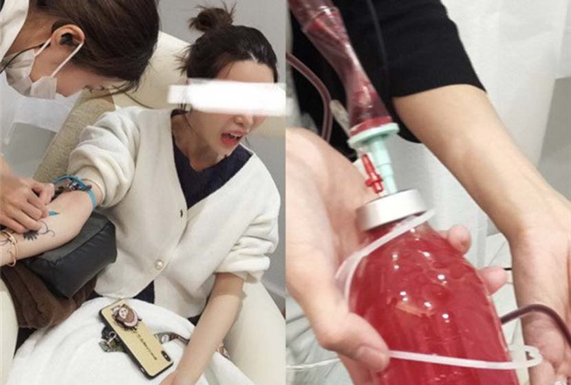 A Chinese web celebrity undergoes a 'blood cleaning' procedure in Japan. From @张沫凡MOMO on Weibo