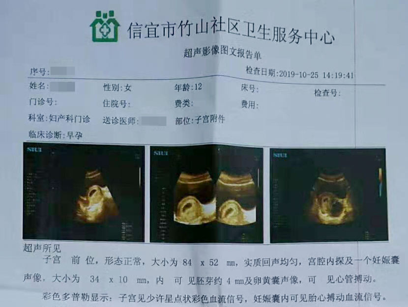 A medical document with ultrasound images confirming the 12-year-old victim's pregnancy. Courtesy of her family