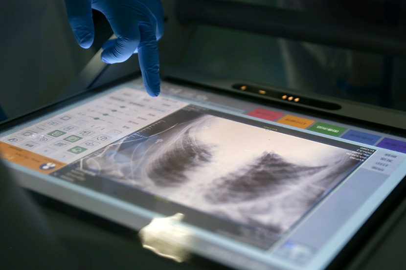 A doctor examines a CT scan at a hospital in Wuhan, Hubei province, January 2020. Zheng Chaoyuan for Sixth Tone