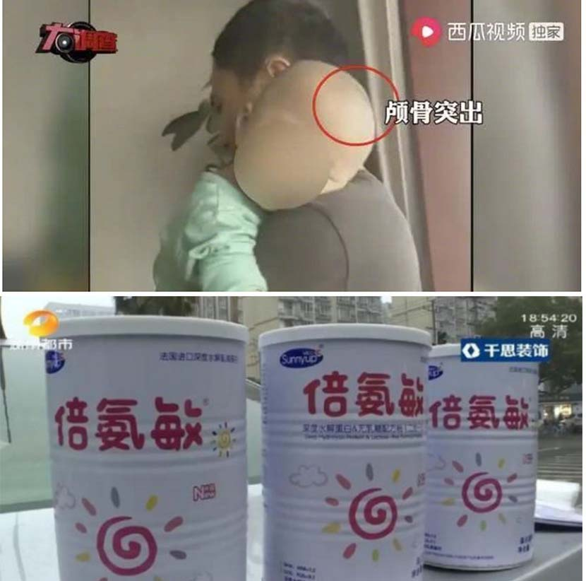 Screenshots of one of the sick children and containers of Bei An Min protein powder. From @头条新闻 on Weibo