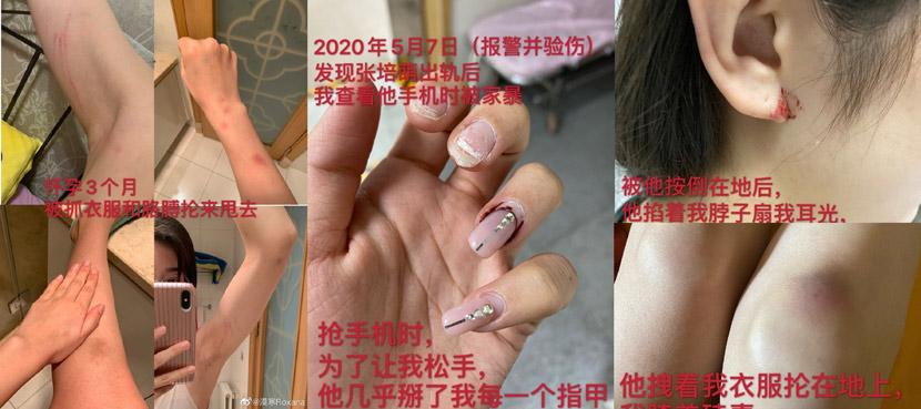 Photos shared Zhang Mohan shared online as evidence of her husband's abuse. From @漠寒Roxana on Weibo