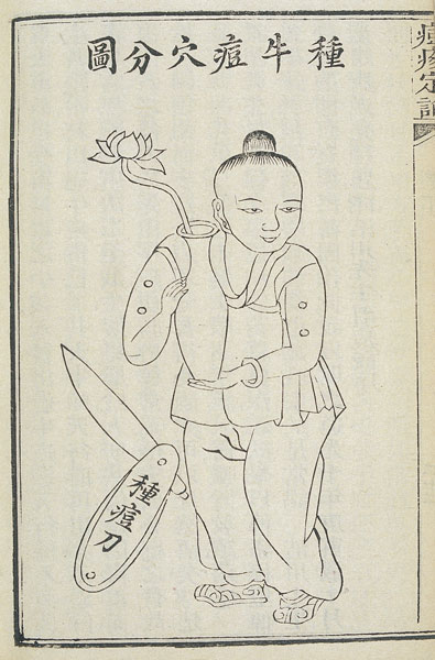 A Qing Dynasty diagram of a smallpox vaccination. Courtesy of Liu Xiaomeng