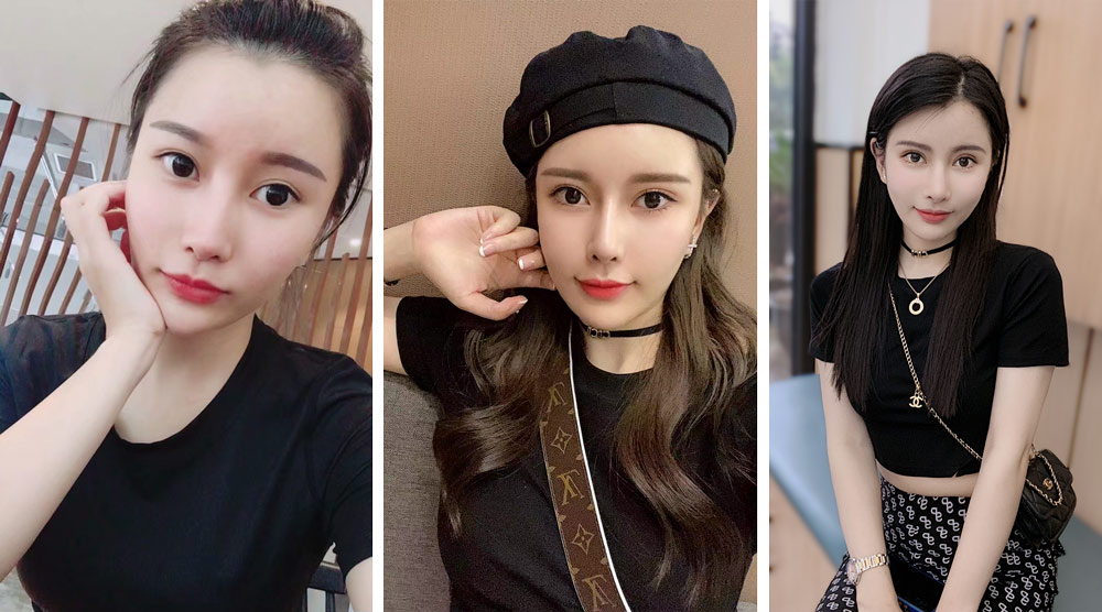 Gao poses for selfies, in images captured between 2015 and 2021. From left to right, the photos show her before her nose jobs, after her fourth procedure, and after she had the implants removed. Courtesy of Gao