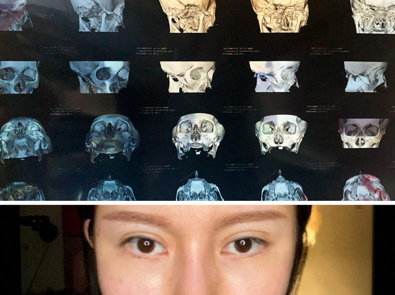 Top: A CT scan of Gao's face, which indicated the tissue in her nose was swelling, performed in January 2021; Bottom: A selfie of Gao, showing her swollen nose. Courtesy of Gao