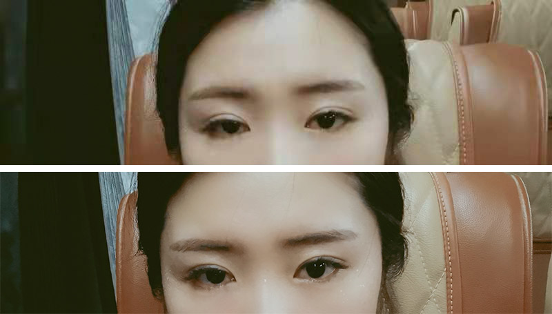 Selfies of Ma Jing, which show her asymmetrical eyes. Her left eyelid droops further than her right when she's not raising her eyebrows. Courtesy of Ma Jing