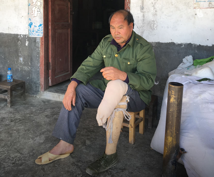 A villager who lost his leg during a mine explosion sits outside the gate of his house in Balihe Village, Malipo County, Yunnan province, Nov. 28, 2017. Wang Wanchun for Sixth Tone